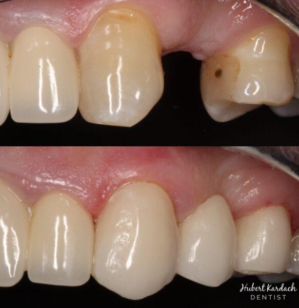 Uzupełnienie brakującego zęba